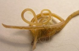 Roundworms from the gut