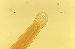 Hookworm (Ancylostoma braziliense mouth parts)
