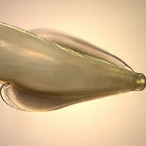 Cat roundworm (Toxocara cati)